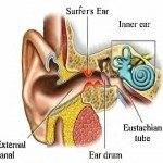 Surfer's Ear: It's a Bummer